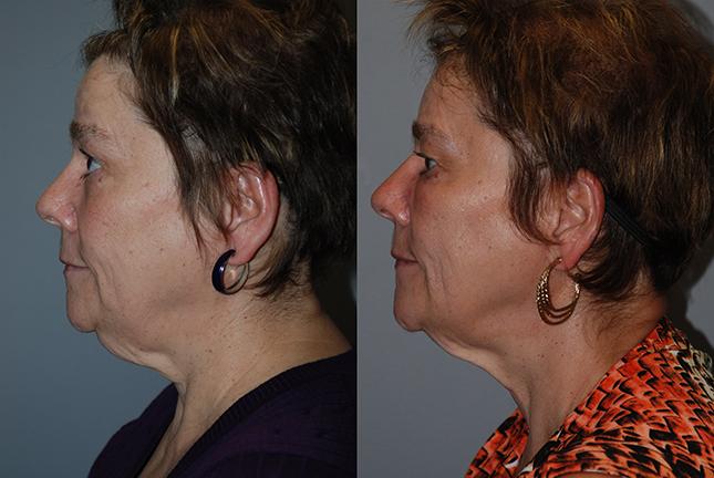 Fat grafting cheeks, temples, chin, mandibular border 9
