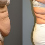 Liposuction Abdomen and Waist