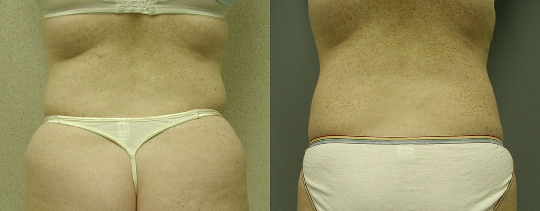 Liposuction Waist and Abdomen