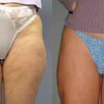 Liposuction and Vela Smooth