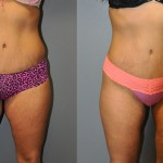 Smart Lipo Medial, Thighs and Waist