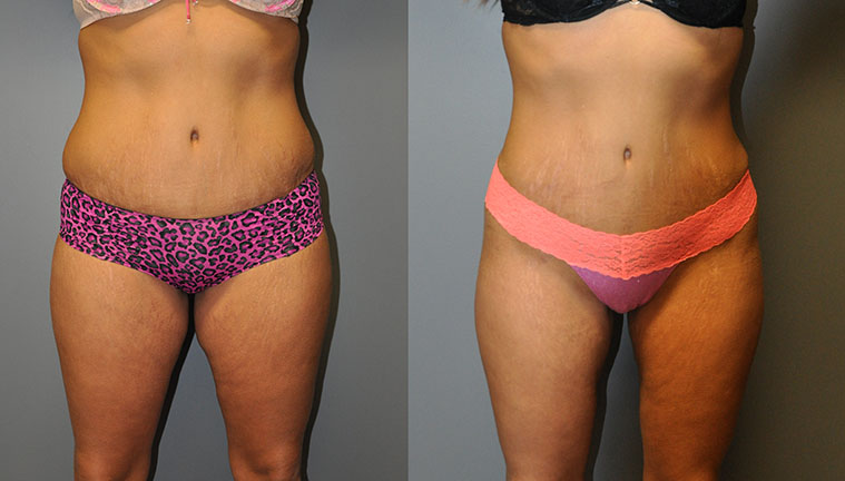 Smart Lipo MedSmart Lipo Medial, Thighs and Waistial, Thighs and Waist