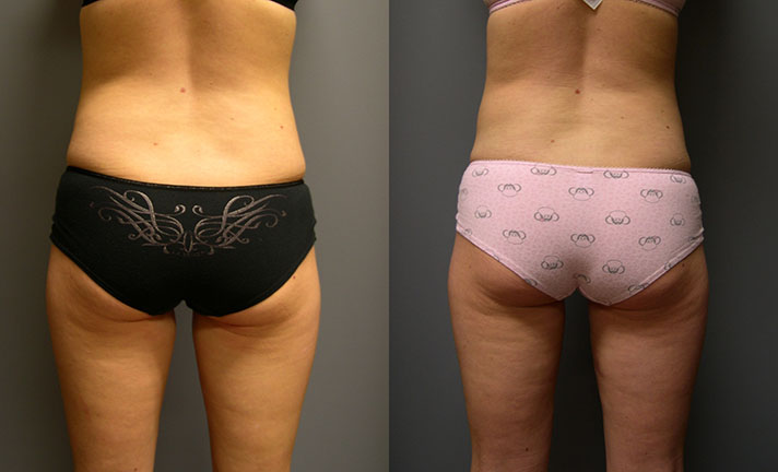 SmartLipo Abdomen, Medial Thighs and Waist