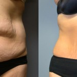 SmartLipo Abdomen, Ultrasonic Liposuction Abdomen