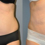 SmartLipo Abdomen, Ultrasonic Liposuction Abdomen, Liposuction Waist
