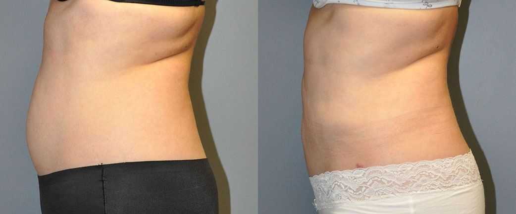 Smartlipo Abdomen, Ultrasonic Liposuction Abdomen and Waist