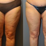 SmartLipo Lateral Thighs, Medial Thighs