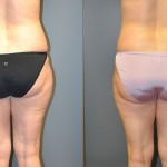 SmartLipo Medial Thighs and Abdomen