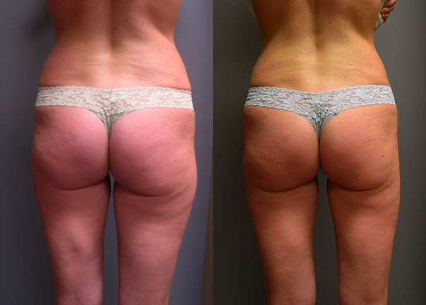 SmartLipo Lateral Thighs and Waist