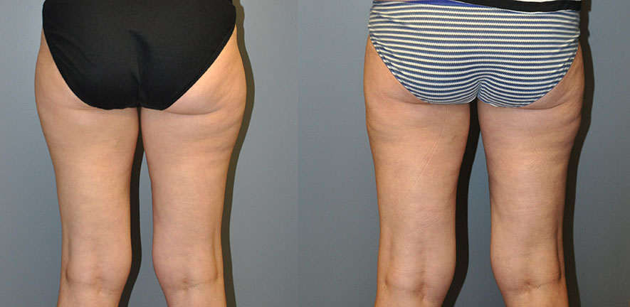 SmartLipo Lateral and Medial Thighs