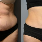 Ultrasonic Liposuction Abdomen