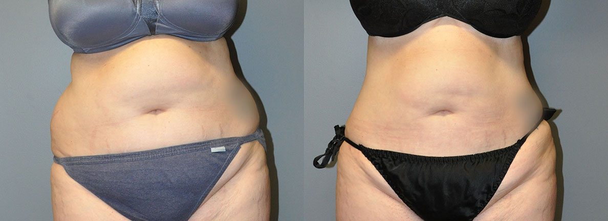 Ultrasonic Liposuction Abdomen, Arms and Waist