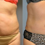 Ultrasonic Liposuction Abdomen and Waist