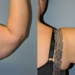 Ultrasonic Liposuction Arms