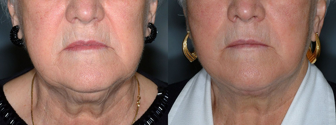 Ultrasonic Liposuction Chin