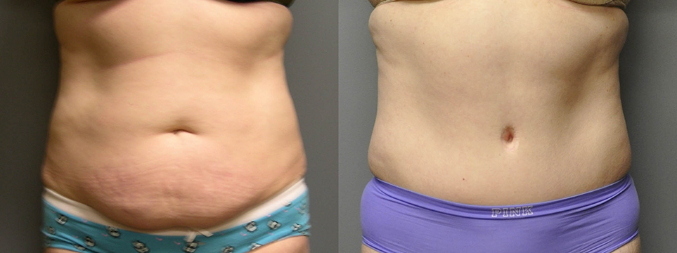 Abdominoplasty/Tummy Tuck