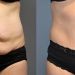 Abdominoplasty/ Tummy Tuck