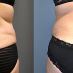 Abdominoplasty/Tummy Tuck