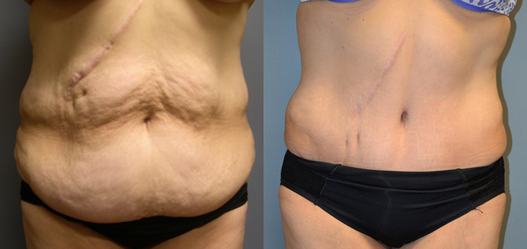 Abdominoplasty with Ultrasound-Assisted Lipoplasty waist and chest