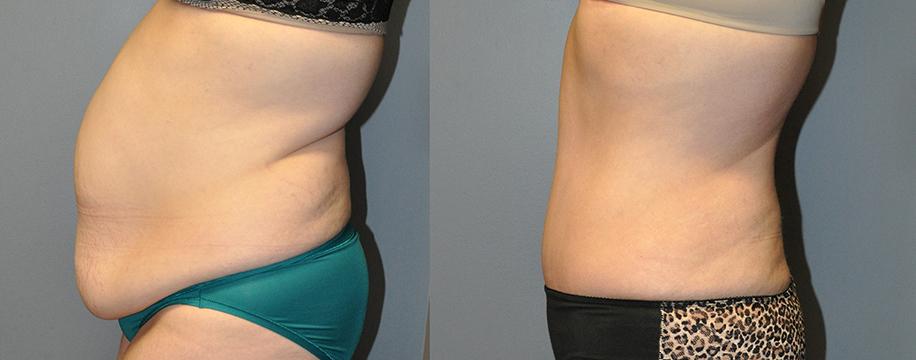 Abdominoplasty & Ultrasound-Assisted Lipoplasty Waist