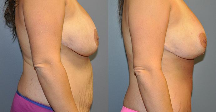 Abdominoplasty & Ultrasonic Liposuction Waist and Chest