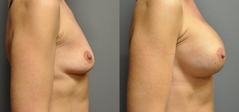 Breast Augmentation 12