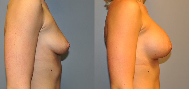 Breast Augmentation 15