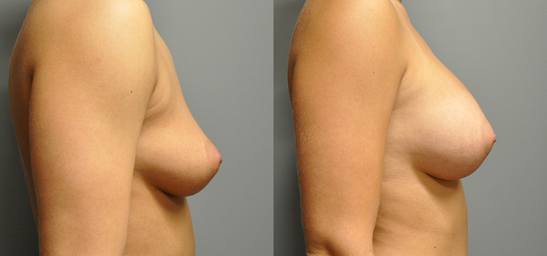 Breast Augmentation 18
