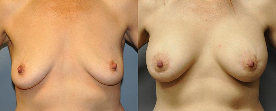 Breast Augmentation and Mastopexy 2