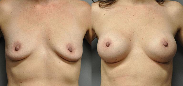 breast-augmentation-20