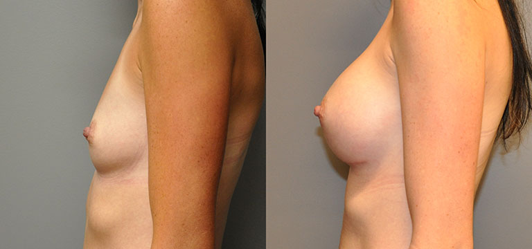 breast-augmentation-28
