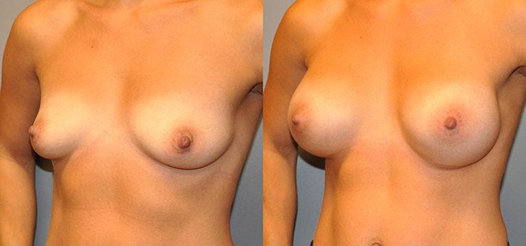 breast-augmentation-3