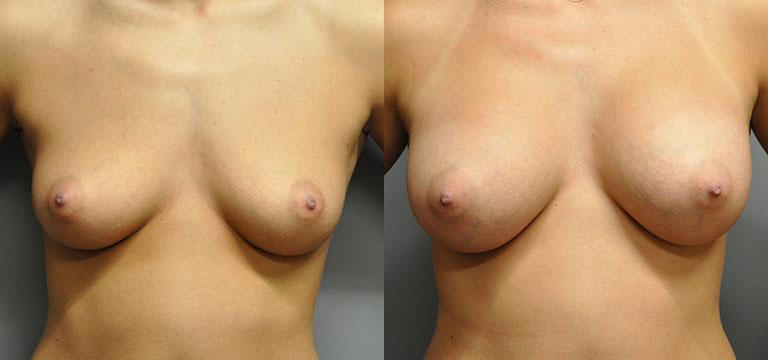 breast-augmentation-35