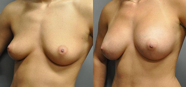 breast-augmentation-36