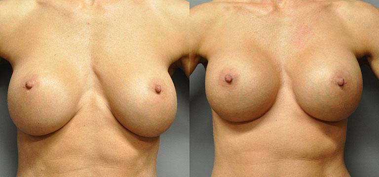 breast-augmentation-38