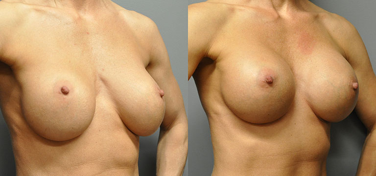 breast-augmentation-39