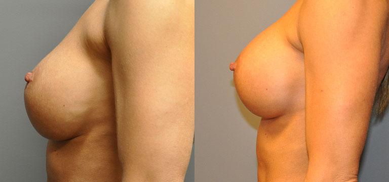breast-augmentation-40