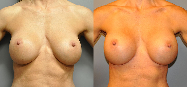 breast-augmentation-41