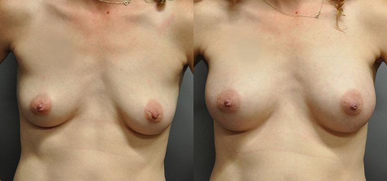 breast-augmentation-44