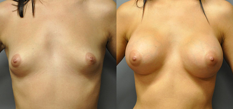 breast-augmentation-47