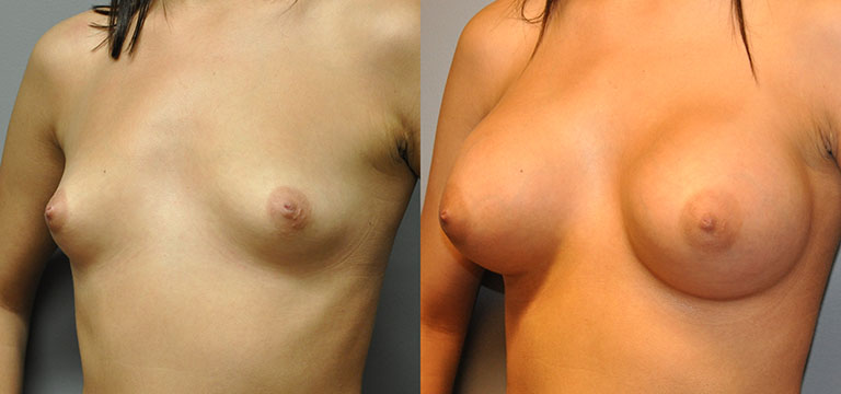 breast-augmentation-48