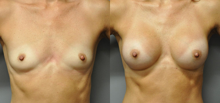 breast-augmentation-5