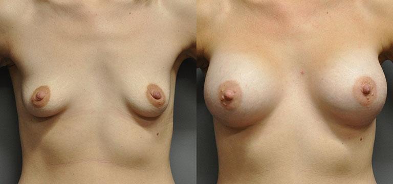 breast-augmentation-50