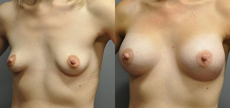 breast-augmentation-51