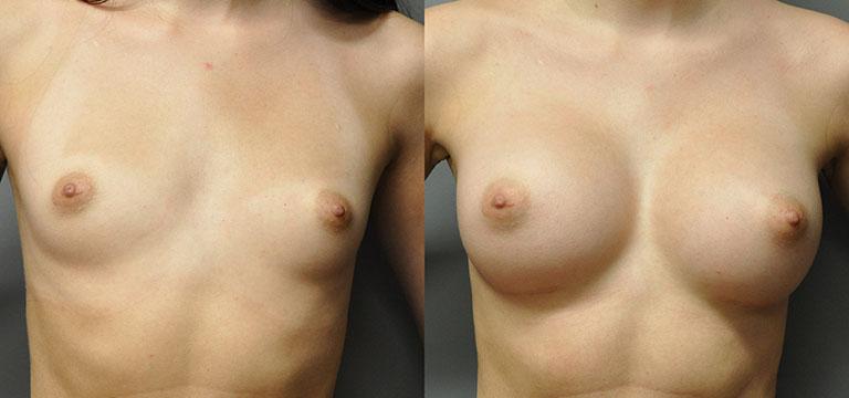 breast-augmentation-52