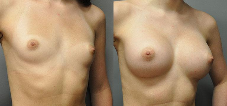 breast-augmentation-53