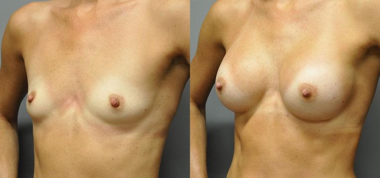 breast-augmentation-6