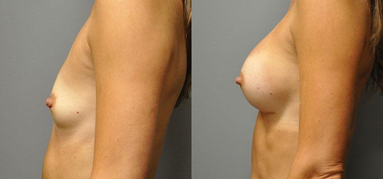 breast-augmentation-7