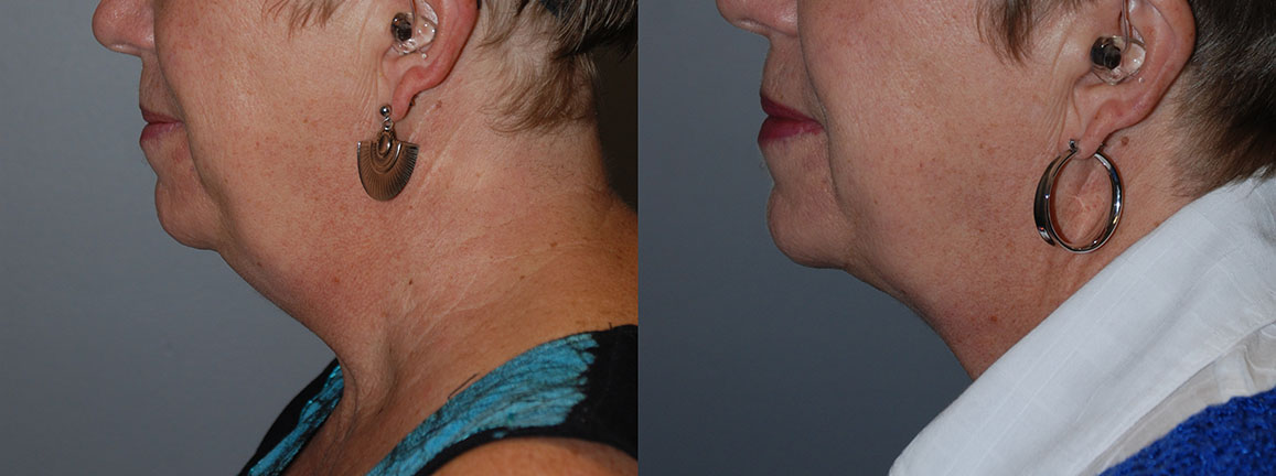 Smartlipo - Submental Chin