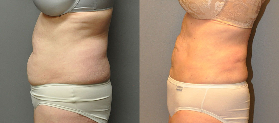 Ultrasonic Liposuction - Abdomen and Waist